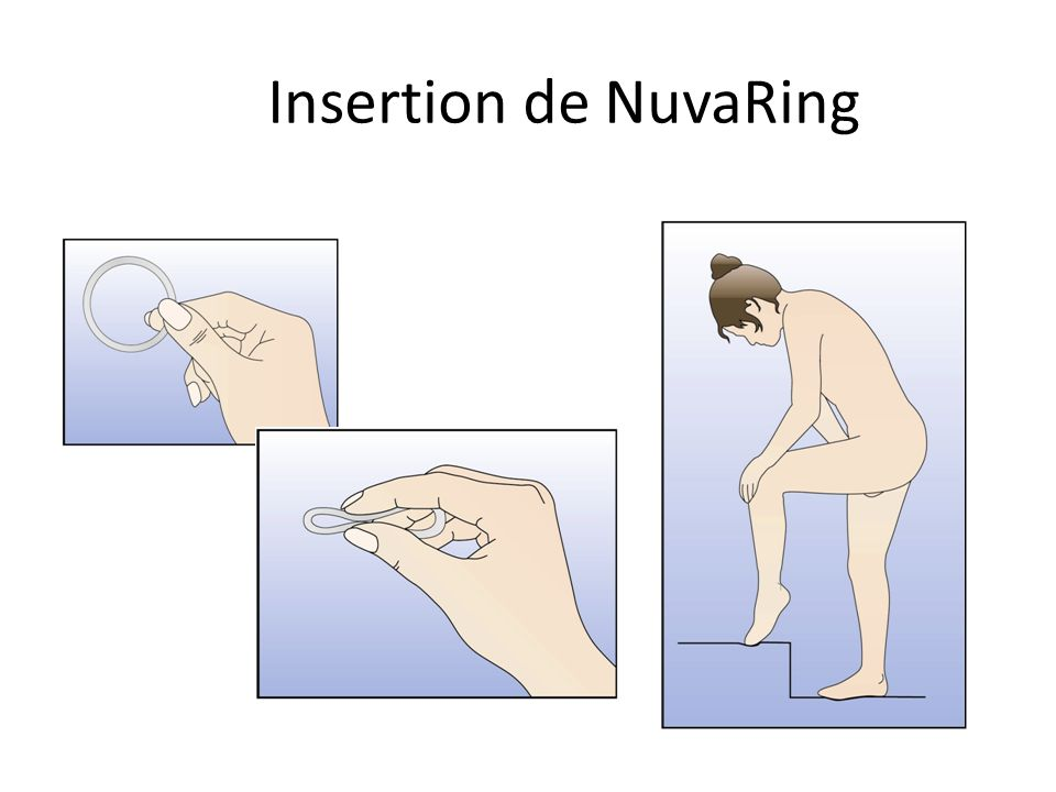 Insertion de NuvaRing