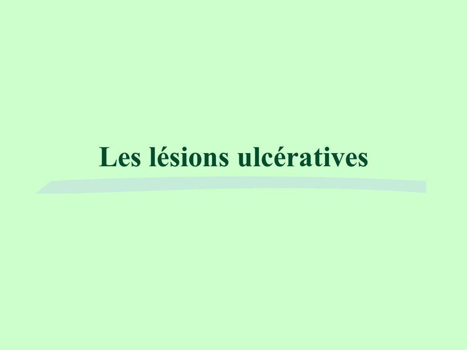 Les lésions ulcératives