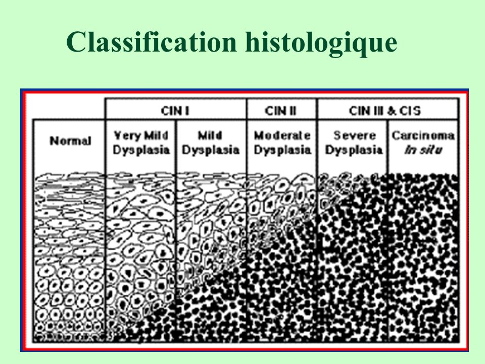 Classification histologique