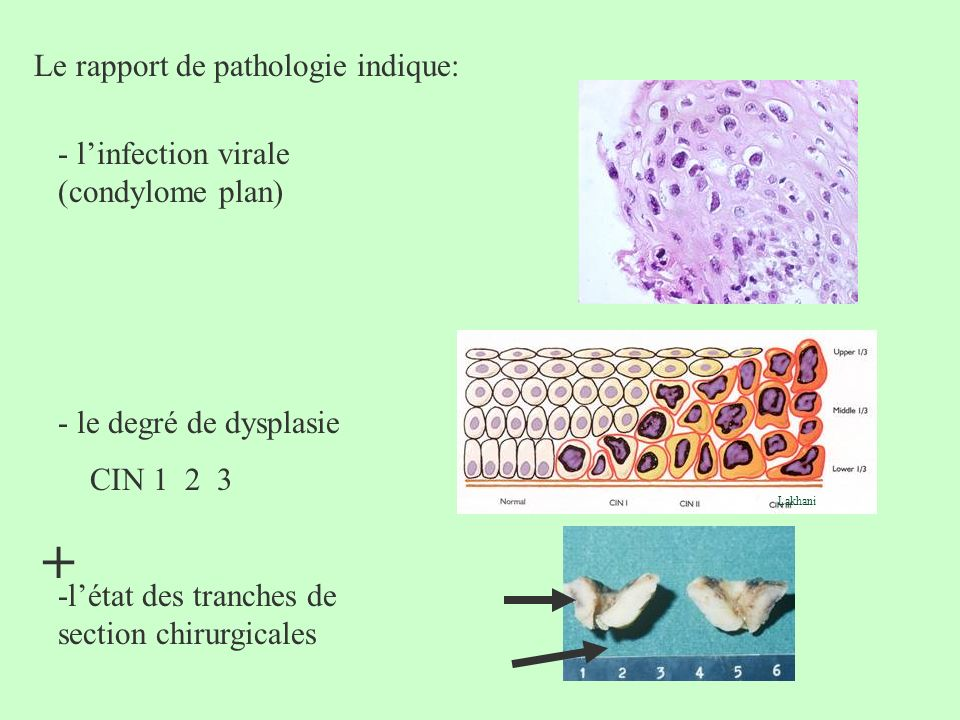 + Le rapport de pathologie indique: