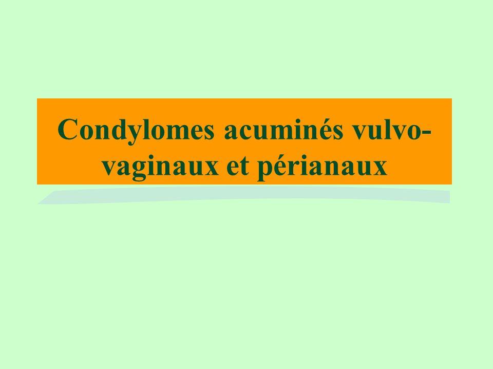 Condylomes acuminés vulvo-vaginaux et périanaux