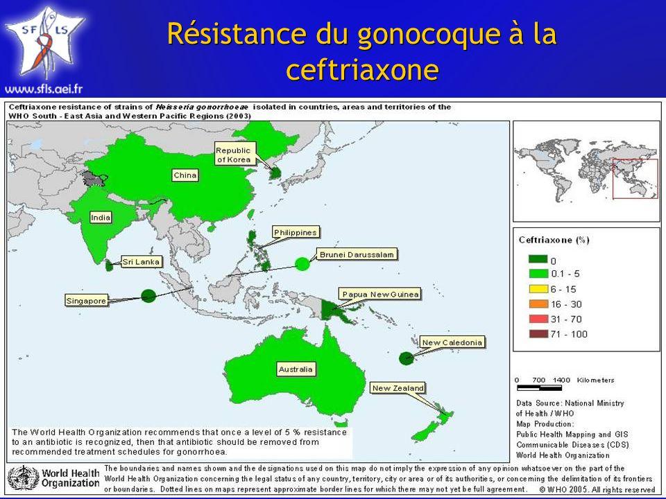 Résistance du gonocoque à la ceftriaxone