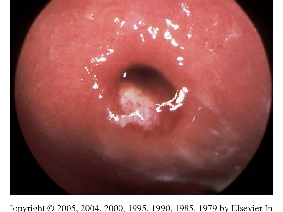 FIGURE 209-10. Purulent endocervical exudate in gonococcal cervicitis