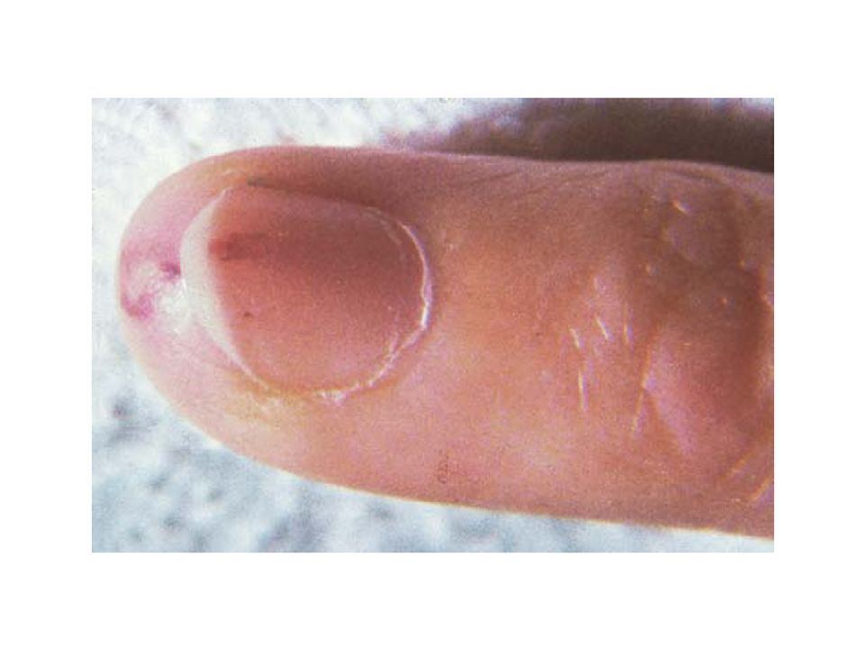 FIGURE C. Cutaneous lesions in disseminated gonococcal infection