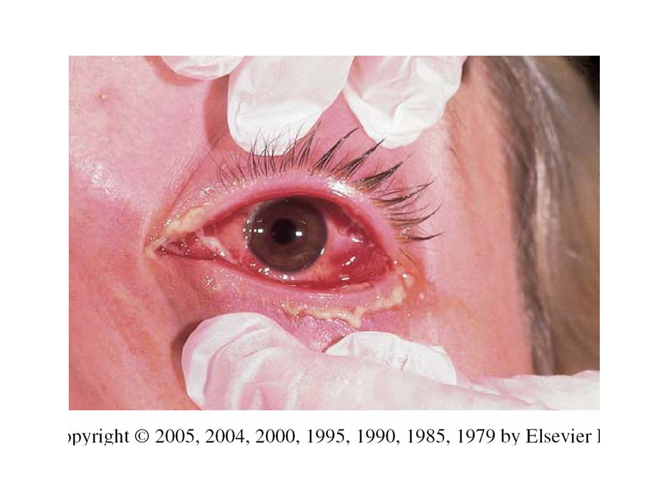 FIGURE Acute gonococcal conjunctivitis in an adult