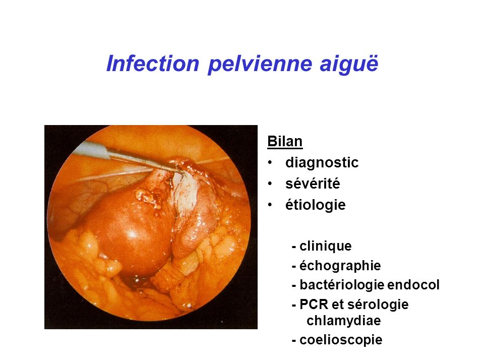 Infection pelvienne aiguë