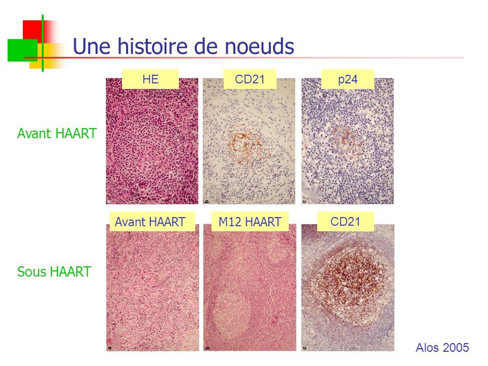 Une histoire de noeuds Avant HAART Sous HAART HE CD21 p24 Avant HAART