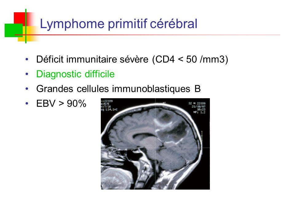 Lymphome primitif cérébral