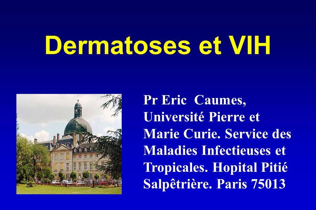 Dermatoses et VIH Pr Eric Caumes,