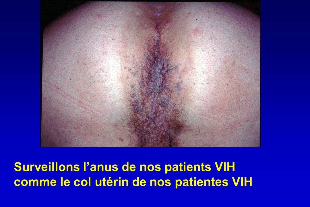 Surveillons l'anus de nos patients VIH