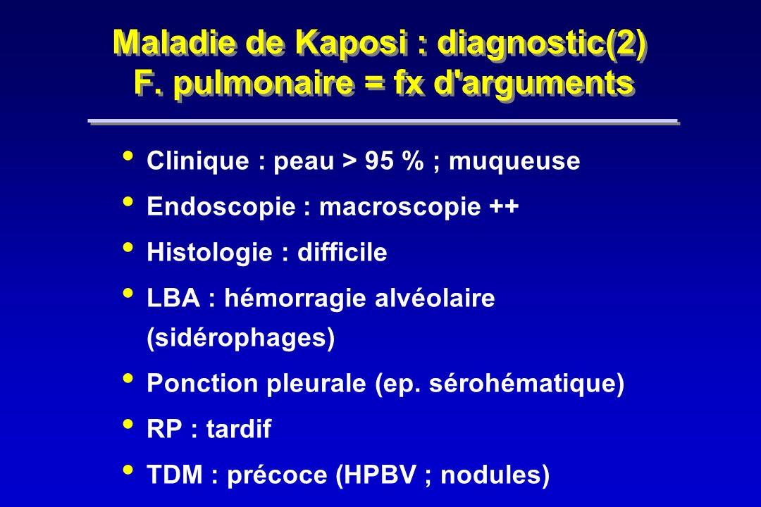 Maladie de Kaposi : diagnostic(2) F. pulmonaire = fx d arguments