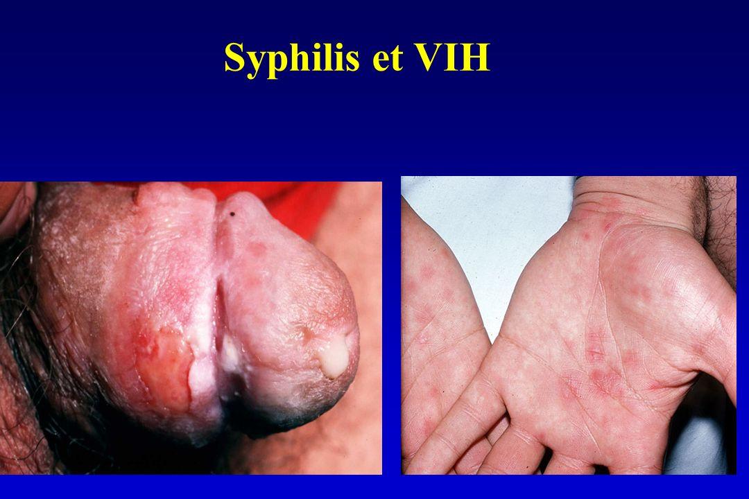 Syphilis et VIH