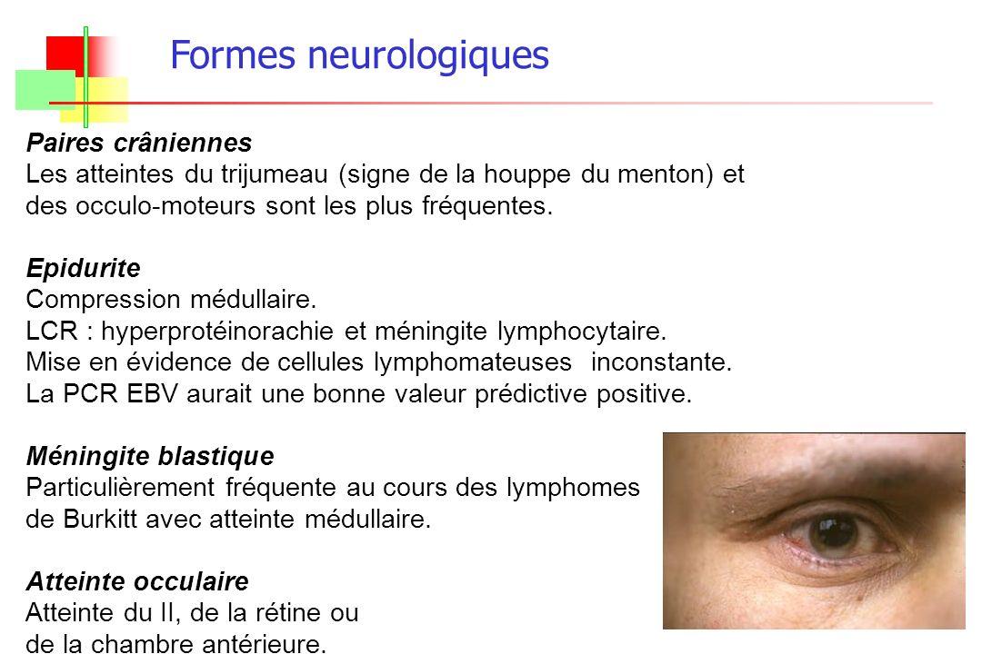 Formes neurologiques Paires crâniennes