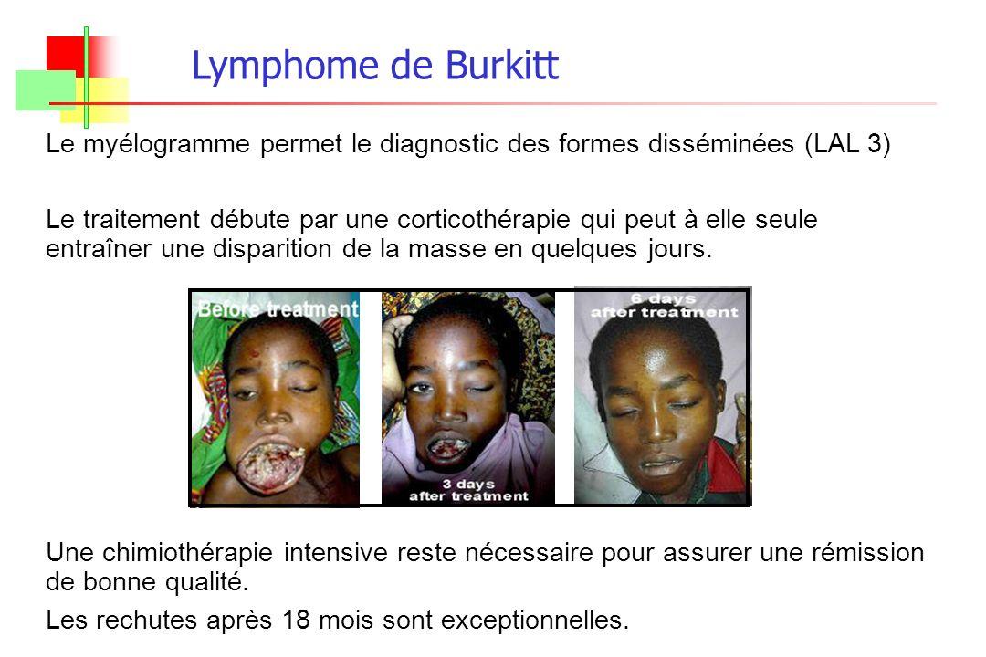 Lymphome de Burkitt Le myélogramme permet le diagnostic des formes disséminées (LAL 3)