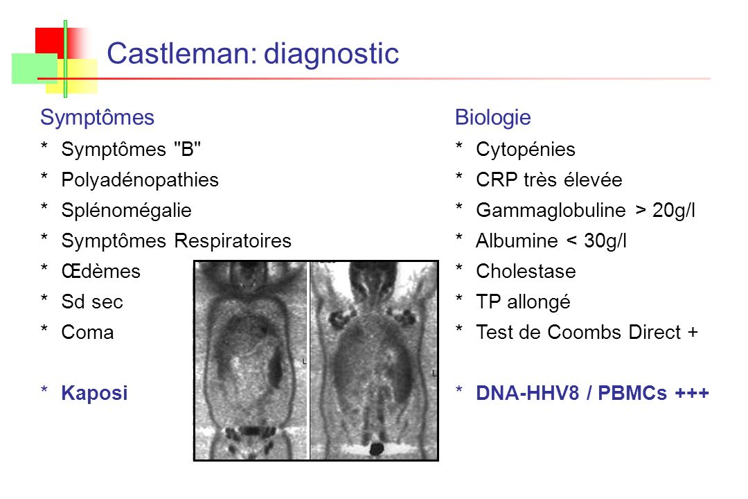 Castleman: diagnostic