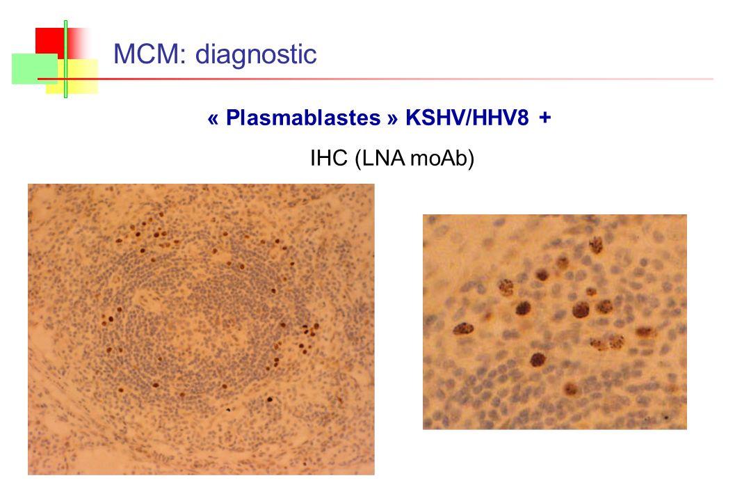 « Plasmablastes » KSHV/HHV8 +
