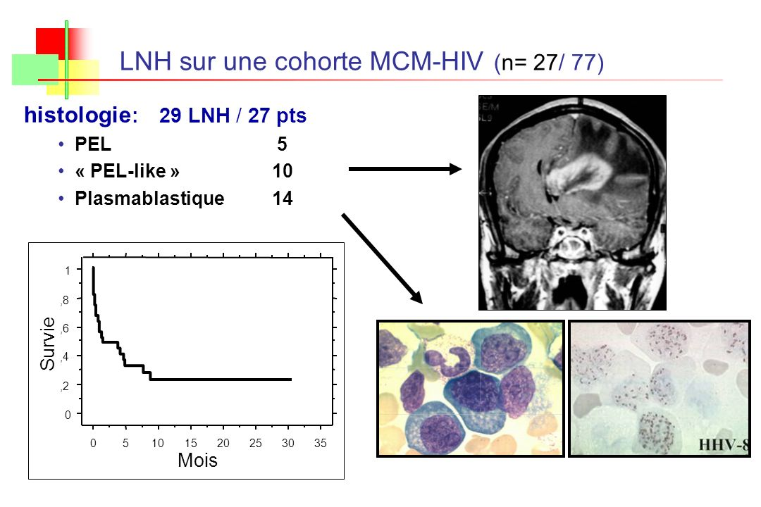LNH sur une cohorte MCM-HIV (n= 27/ 77)