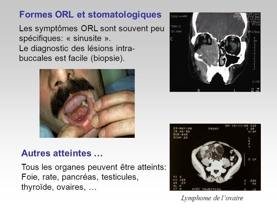 Formes ORL et stomatologiques