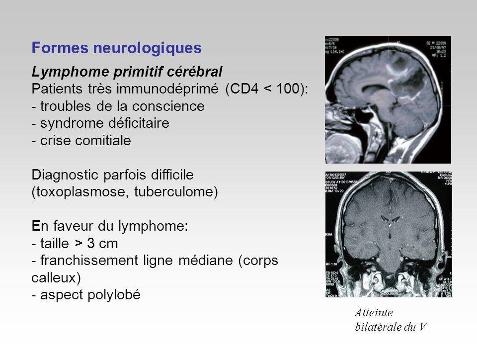 Formes neurologiques Lymphome primitif cérébral