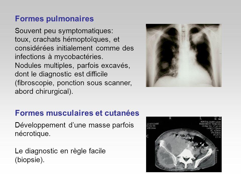Formes musculaires et cutanées
