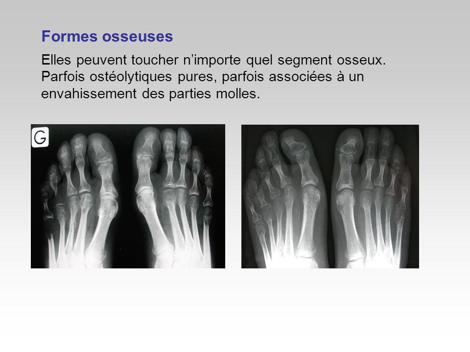 Formes osseuses Elles peuvent toucher n'importe quel segment osseux.