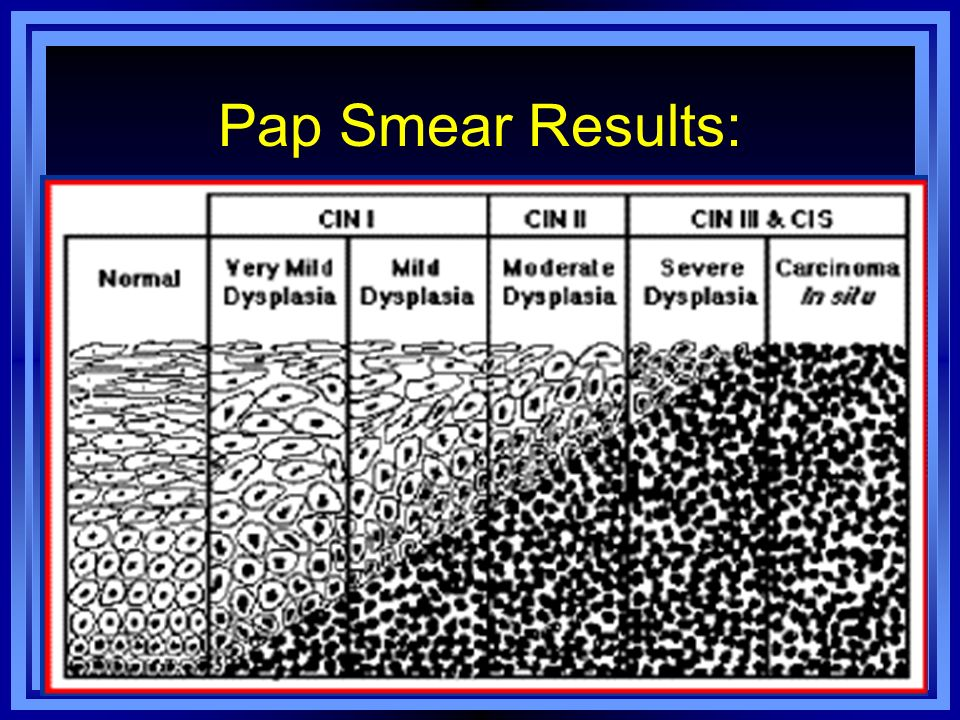 Pap Smear Results: