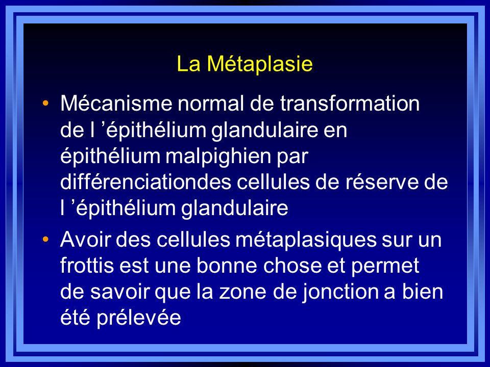 La Métaplasie