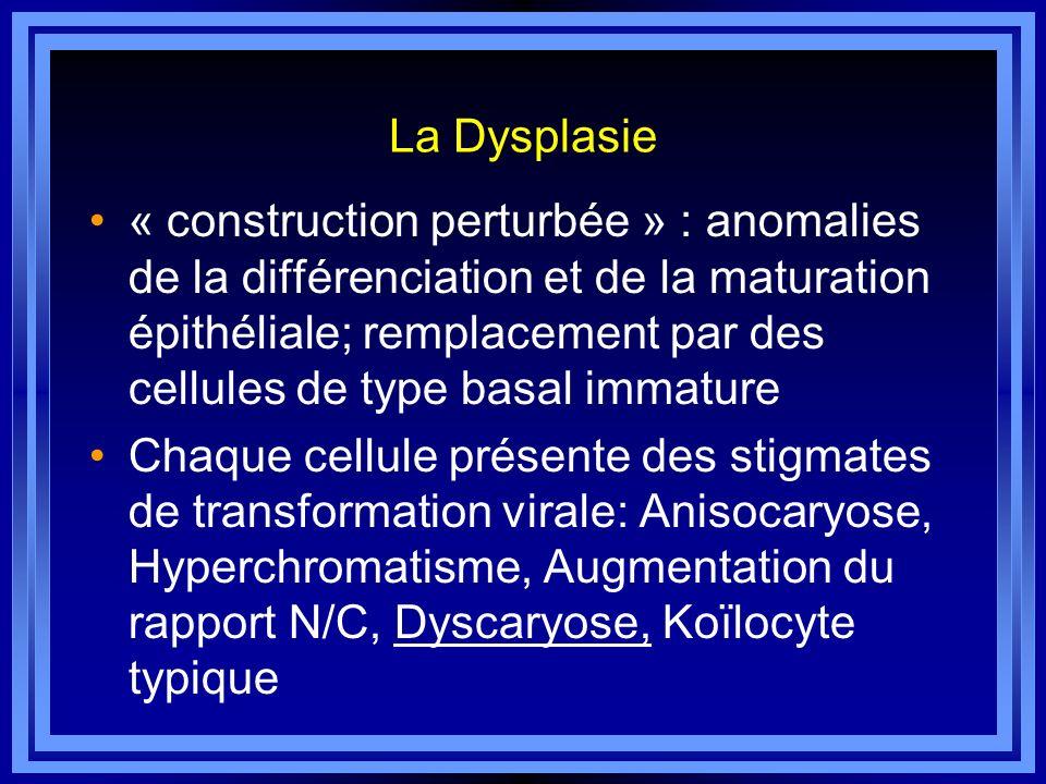 La Dysplasie