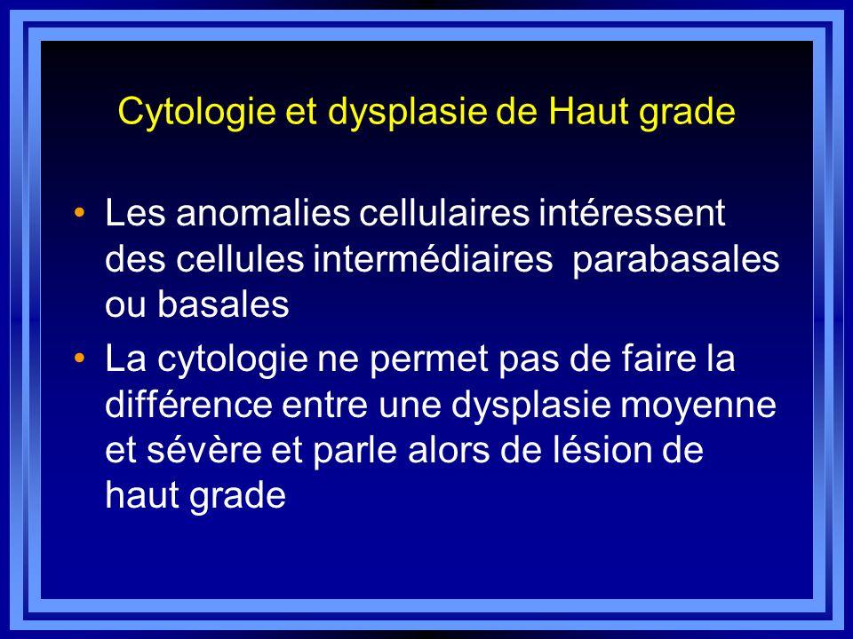 Cytologie et dysplasie de Haut grade