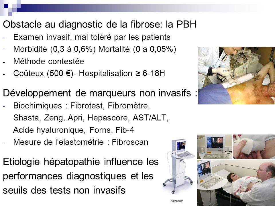 Obstacle au diagnostic de la fibrose: la PBH