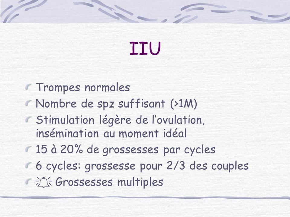 IIU Trompes normales Nombre de spz suffisant (>1M)