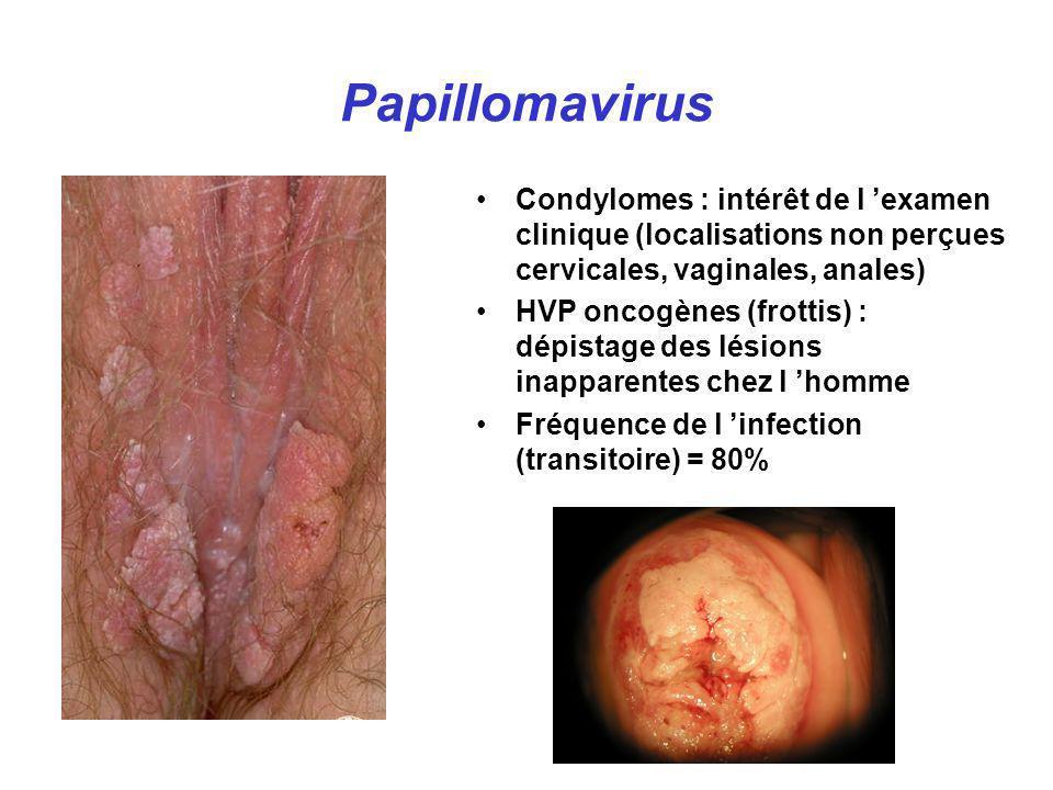Papillomavirus Condylomes : intérêt de l 'examen clinique (localisations non perçues cervicales, vaginales, anales)