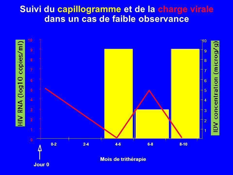 Suivi du capillogramme et de la charge virale