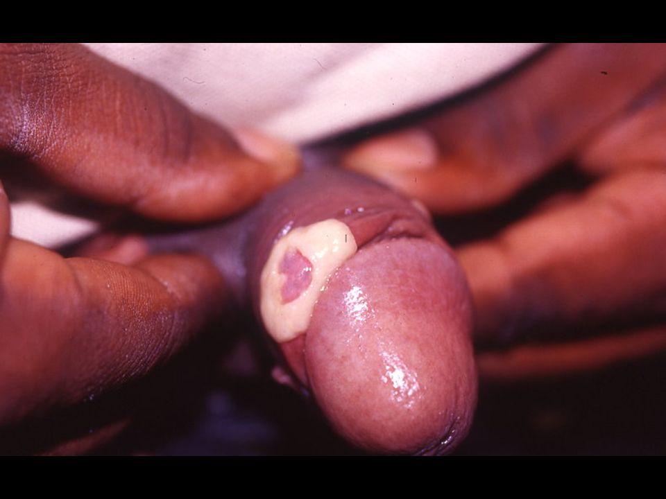Herpès atypique chez HIV +: reconstitution Ful Rch
