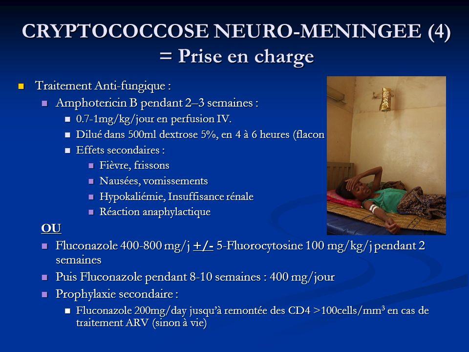 CRYPTOCOCCOSE NEURO-MENINGEE (4) = Prise en charge