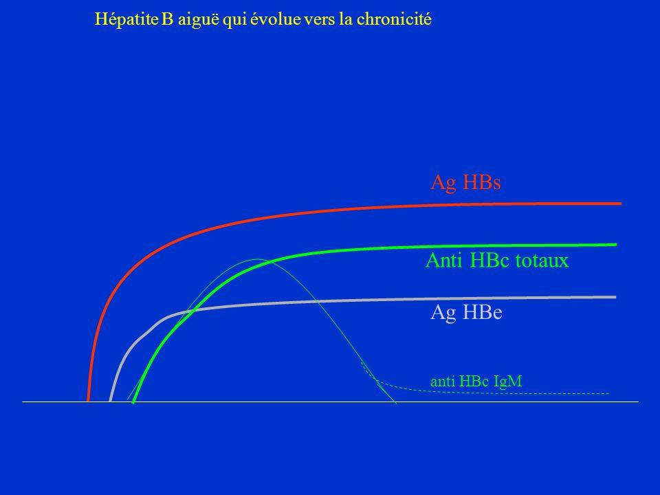 Hépatite B aiguë qui évolue vers la chronicité
