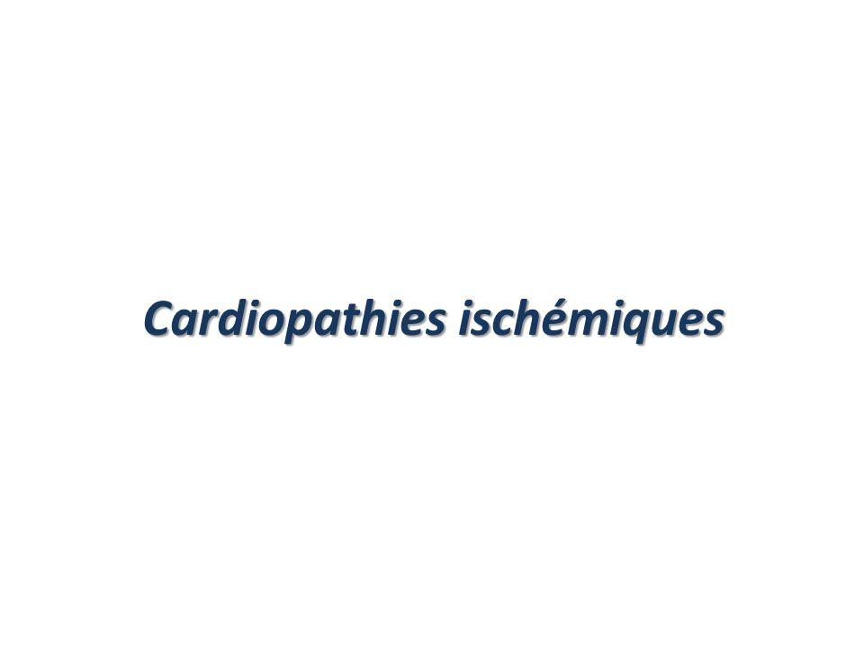 Cardiopathies ischémiques