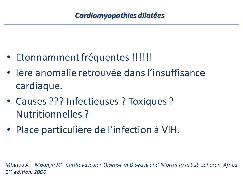 Cardiomyopathies dilatées