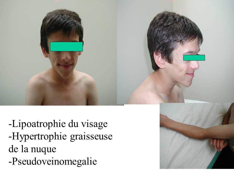 -Lipoatrophie du visage