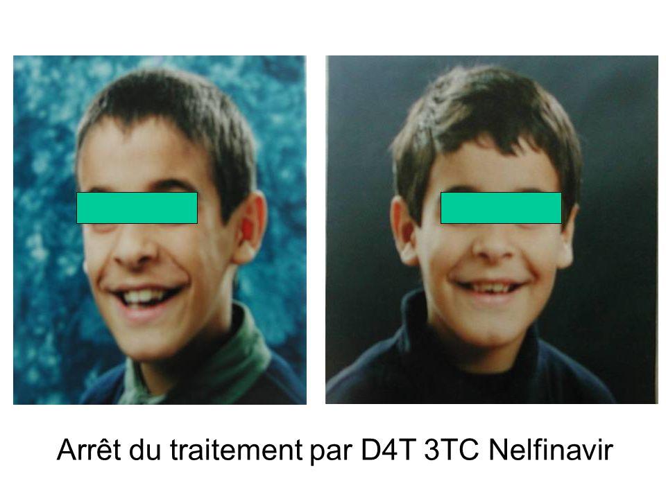 Arrêt du traitement par D4T 3TC Nelfinavir