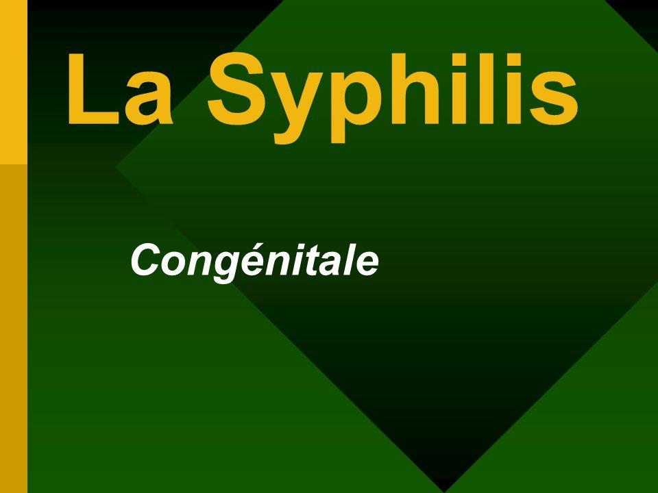 La Syphilis Congénitale