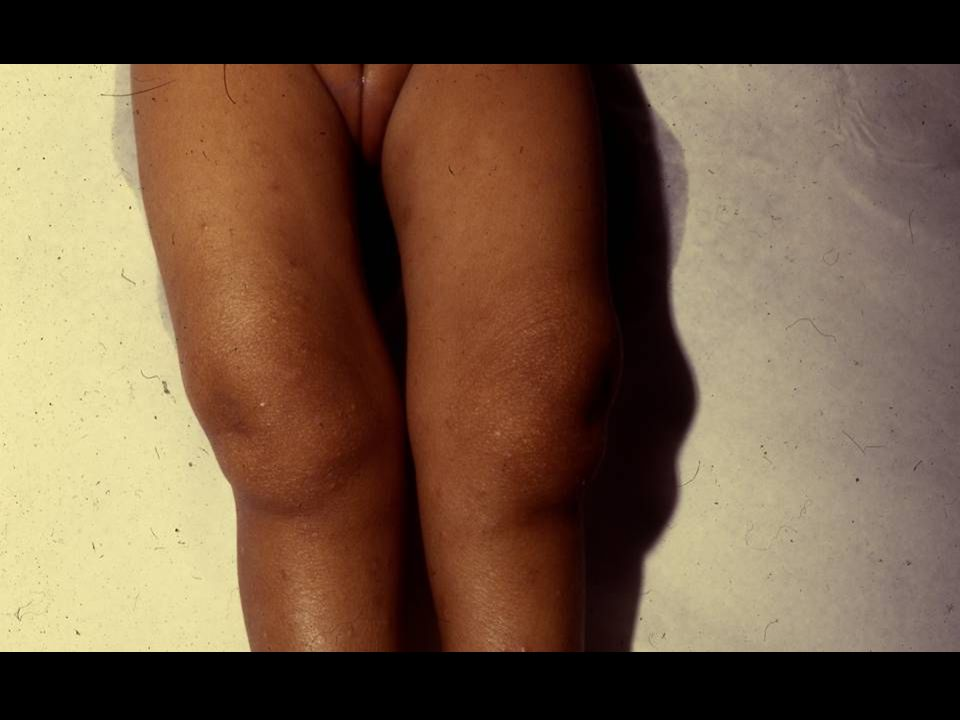 Congenital Syphilis, 1982 Natacha was diagnosed too late, at 2 years