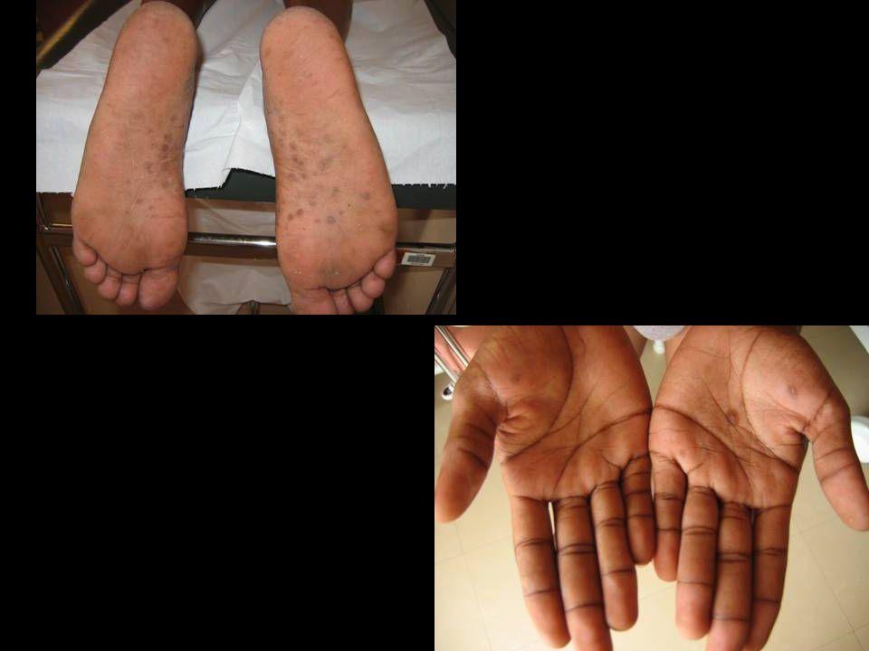 Epidémie Martinique Homo 22 ans