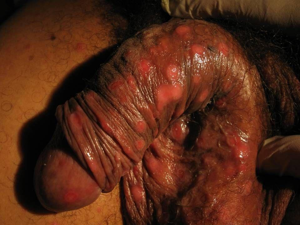 Et_: Syphilides secondaires ulcéreuses chez un toxicomane (VIH+)