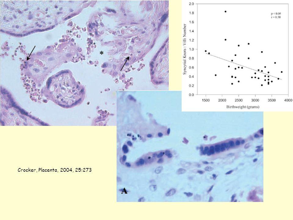 Crocker, Placenta, 2004, 25:273