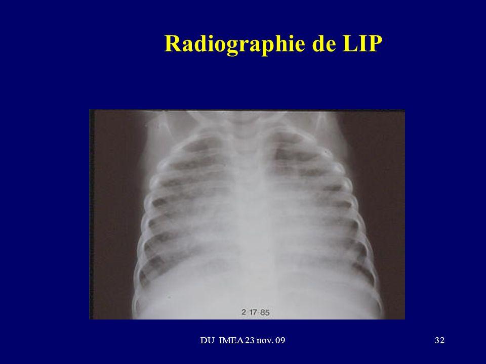 Radiographie de LIP DU IMEA 23 nov. 09