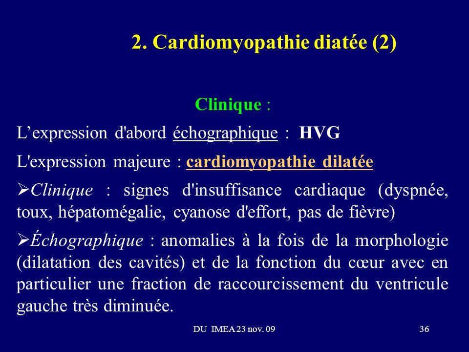 2. Cardiomyopathie diatée (2)