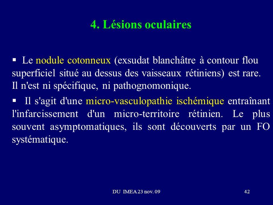 4. Lésions oculaires