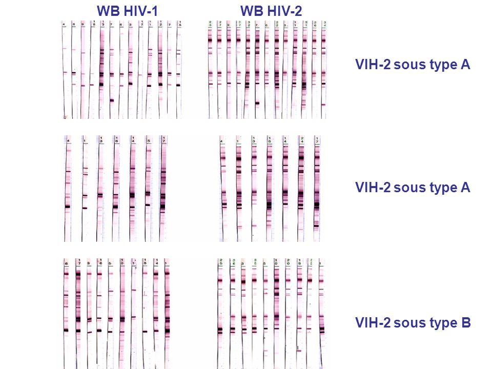 WB HIV-1 WB HIV-2 VIH-2 sous type A VIH-2 sous type A VIH-2 sous type B