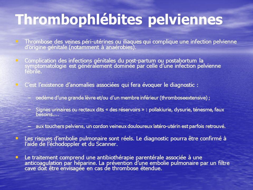 Thrombophlébites pelviennes